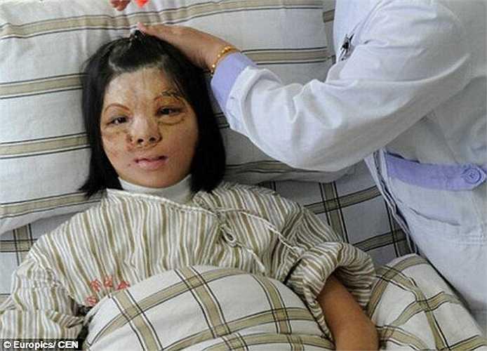 Một trường hợp khác là cô gái Xu Jianmei có khuôn mặt cũng bị biến dạng bởi một đám cháy khi cô 5 tuổi.