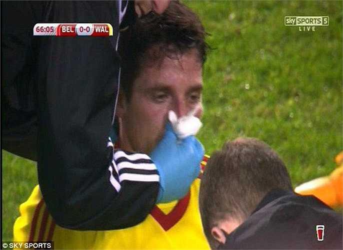 Nếu không, gần như chắc chắn 'gã đồ tể' của tuyển Bỉ sẽ phải rời sân sau khi khiến Allen bị vỡ mũi