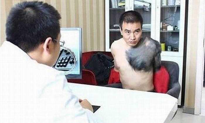 1. Zhang Hongming từ Trùng Khánh, Trung Quốc, có biệt danh là 'Tinh tinh' vì anh có vùng bớt đen đầy lông bao phủ một phần lớn cơ thể.