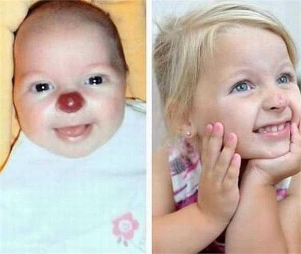 2. Connie Lloyd, 2 tuổi, có vết bớt màu đỏ tươi như 'mũi chú hề'. Sau đó, cô bé đã được các bác sĩ phẫu thuật giúp cô bé có chiếc mũi như bình thường.