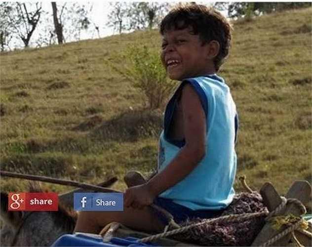 Colombia bị trêu chọc và bị cấm đến trường vì người dân địa phương trong làng cho rằng cậu bị nguyền rủa. Sau đó, một nhóm bác sĩ ở Anh đã giúp đỡ bé phẫu thuật ghép da.