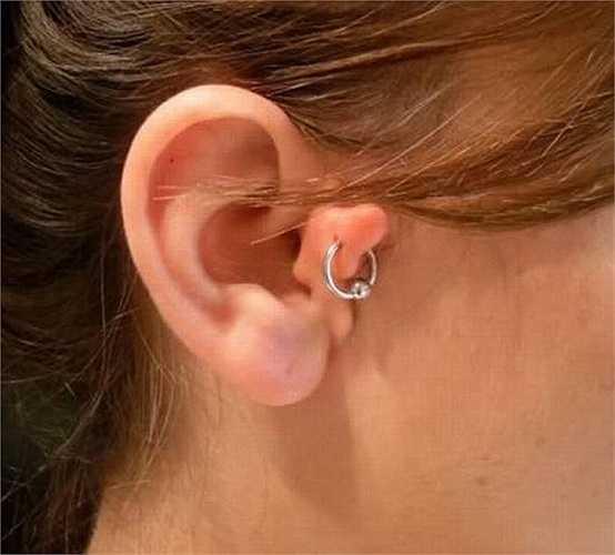 6. Cô gái trẻ có vành tai khác người giống một cục thịt thừa nằm ngay trên chiếc bớt.