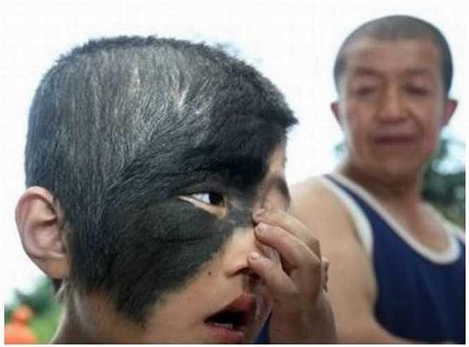 7. An Qi, 8 tuổi, bị một cái bớt lớn màu đen chiếm nửa khuôn mặt. Sắp tới, cậu bé sẽ được tài trợ để phẫu thuật cắt bỏ những mảng bớt này.