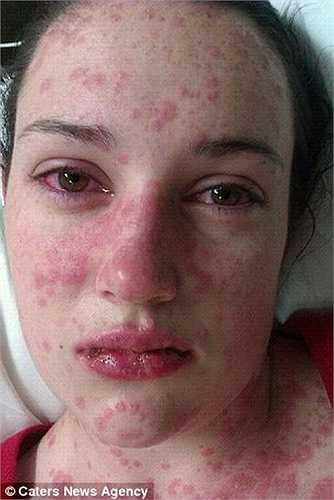 Được đưa tới bệnh viện ở Sydney, các bác sĩ cho biết cô bị mụn rộp và cho phép về nhà điều trị.