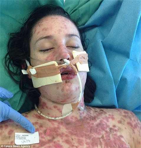 4 ngày sau, tình trạng Heron càng trở nên tồi tệ. Cô lại được đưa cô tới bệnh viện để điều trị.
