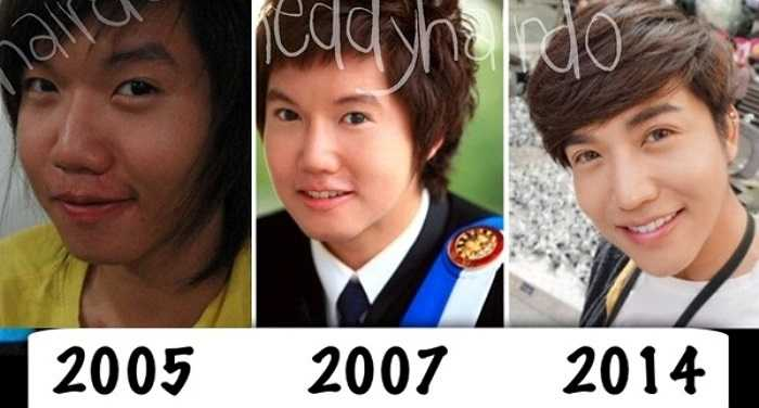 Thần tượng chàng ca sĩ lai Nichkhun (2PM), cô gái có nick name là Theddy (Thái Lan) đã phẫu thuật thẩm mỹ 8 năm và thay đổi phong cách ăn mặc sang tomboy để giống với idol xứ Hàn. Trải qua một thời gian dài dao kéo, hiện tại, Theddy đã có được khuôn mặt V-line, làn da trắng bóc, đôi mắt to, cùng gu thời trang sành điệu, cuốn hút.