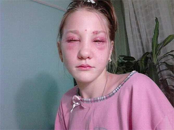 Vì ngại mất thời gian, bố mẹ cô bé quyết định tìm đến thẩm mĩ viện tại Volgograd để nhuộm màu lông mi thay cho việc chải mascara.