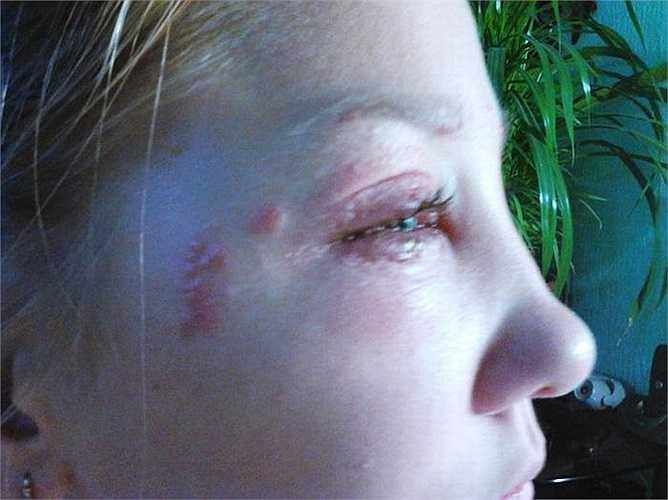 Sau đó, mí mắt của Masha bị biến dạng, sưng húp và không nhìn thấy rõ.