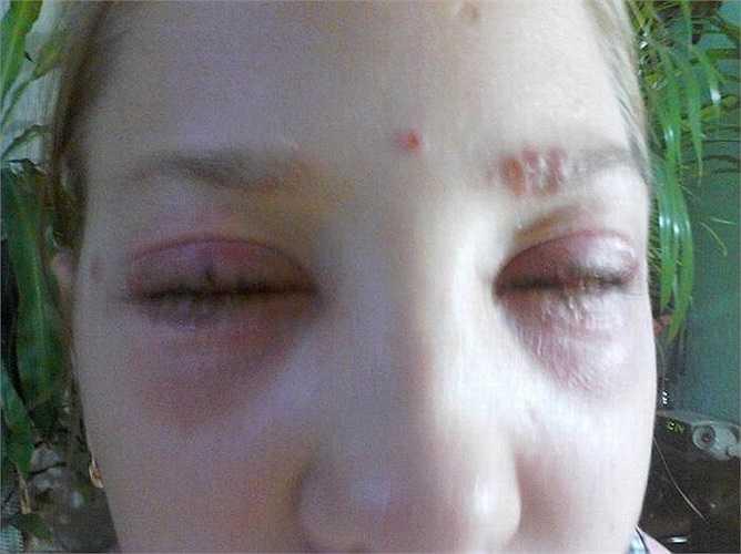 Khi được đưa đến bệnh viện, các bác sỹ kết luận Masha bị bỏng hóa chất nghiêm trọng quanh mắt. Nguyên nhân là do các hóa chất sử dụng để nhuộm màu mi và lông mày gây tổn thương mắt.