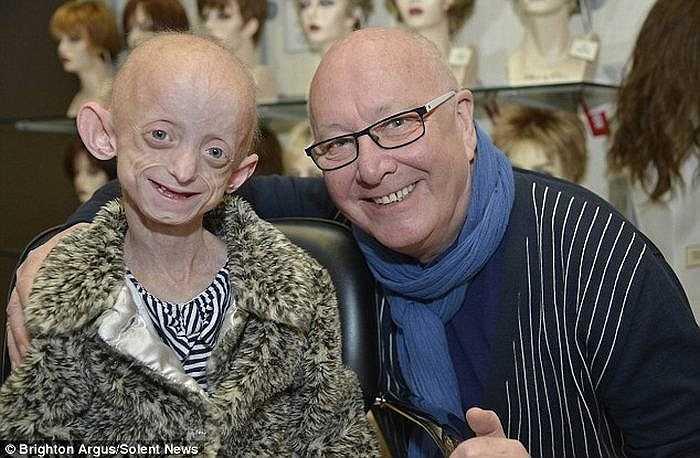 Cô bé Ashanti Smith người Anh mắc căn bệnh lão hóa hiếm gặp. Mới 11 tuổi nhưng khuôn mặt cô bé đã nhăn nheo như bà cụ, tóc rụng gần hết.
