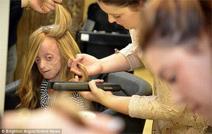 Gần đây, bé được một nhà hảo tâm tài trợ cho 1 bộ tóc giả trị giá hàng trăm bảng Anh.
