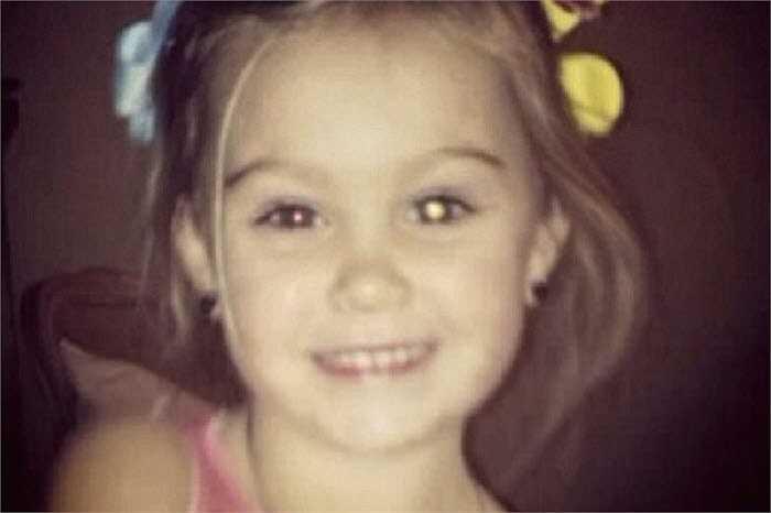 Rylee Taylor (3 tuổi) được chẩn đoán bị bệnh mắt hiếm gặp. Sau khi hình ảnh được đăng tải trên Facebook của mẹ bé, Taylor đã nhận được nhiều sự quan tâm của cộng đồng mạng.
