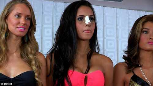 Nhiều cô gái đã phẫu thuật thẩm mỹ để đẹp lên trước khi tham gia vào đấu trường Hoa hậu Hoàn vũ (ảnh minh họa)