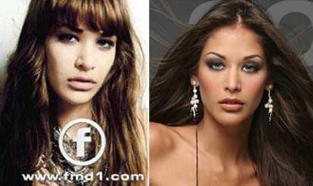 So sánh lại bức ảnh hồi xưa, nhiều người có thể nhận thấy chiếc mũi của cô đẹp và gọn gàng hơn rất nhiều