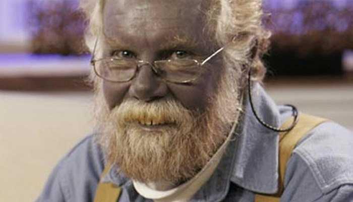 Argyria - Một loại bệnh do sự gia tăng của hợp chất bạc trong da và khi gặp ánh nắng mặt trời, hợp chất này chuyển thành màu xanh.
