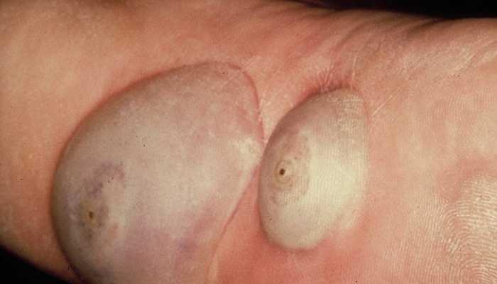Tungiasis là bệnh mà da bị tàn phá bởi 1 loại bọ chét tên là Tunga. Những con bọ chét này đào hang trên da người và đẻ trứng trên đó, gây ra bệnh mà thực tế xuất hiện rất phổ biến ở Nigeria, Trinidad và Tobago - những nơi mà tỉ lệ mắc bệnh tungiasis ở trẻ em rất cao (40%) vào thập niên 80 của thế kỉ trước.
