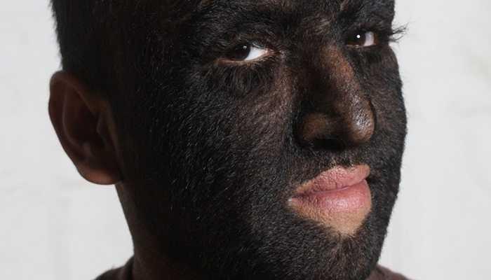 Hypertrichosis bẩm sinh là một thuật ngữ y tế chỉ tình trạng tóc phát triển quá mức, lan cả ra cả mặt. Hội chứng này còn có tên gọi khác là bệnh người sói. Bởi lẽ, khi tóc phát triển khắp trên mặt, bệnh nhân sẽ có khuôn mặt giống hệt người sói trên phim. Trên thế giới có 50 trường hợp mắc hội chứng này.
