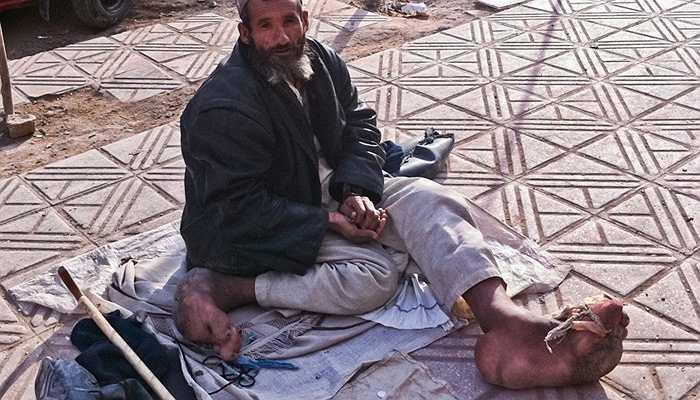 Bệnh phù chân voi - Bệnh chân voi là một bệnh lý do giun chỉ. Về mặt bệnh lý, con giun chỉ sau khi xâm nhập vào người thì nó gây tắt hệ bạch huyết, làm cho bạch huyết không được lưu thông, và tình trạng bị ứ đọng làm cho chân bị phù lên và nó cứng dày lên gọi là phù chân voi.