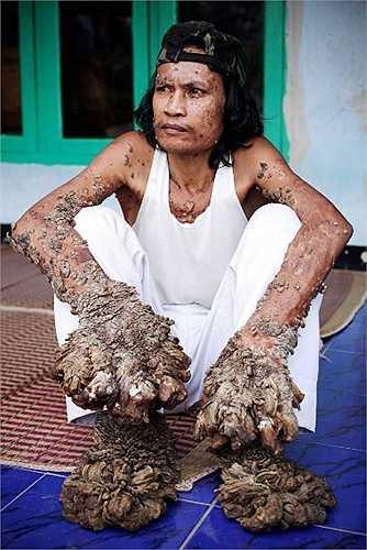 Bệnh người cây - là một dạng rối loạn cực kỳ hiếm, làm cho nhiều vùng da, thường là ở các chi, bị chai sần và nứt nẻ với các u bướu khác thường. Bệnh thường phát triển mạnh vào đầu tuổi trung niên, nhưng đôi khi cũng xuất hiện ở thời niên thiếu.