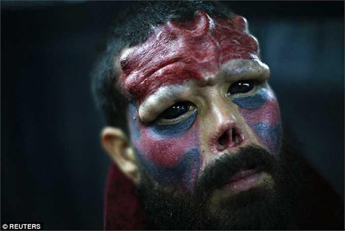 Khuôn mặt người đàn ông dị dạng vì xăm và độn