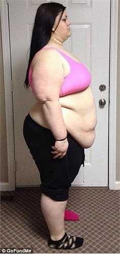 Lúc đầu, Kaitlyn tưởng phải phẫu thuật dạ dày để giảm cân.