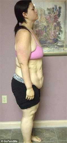 Tuy nhiên sau khi giảm cân, Kaitlyn Smith tiếp tục bị đè nặng bởi phần da thừa trên hai tay, chân, bụng và lưng.