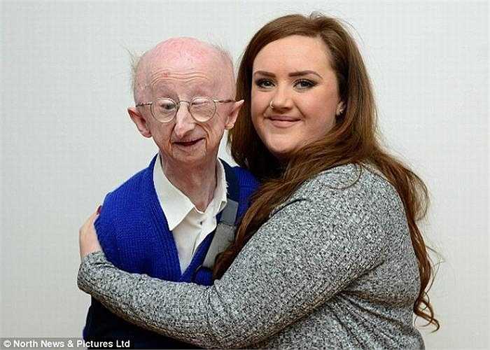 Ông Alan Barnes năm nay 67 tuổi nhưng ông chỉ nhỏ bé như một đứa trẻ với chiều cao 1m40 và cân nặng chưa tới 38kg.