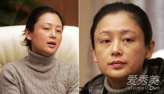 Một nữ diễn viên lộ ra làn da bị nám và mệt mỏi khi thiếu vắng son phấn  (Theo 24h)