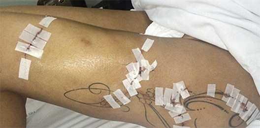 Vết thương của Andressa tiếp tục biến chứng nặng, dẫn tới việc cô nàng phải nhập viện trong tình trạng nguy kịch. Nhiều khả năng tình một đêm của Ronaldo sẽ còn phải đi xe lăn trong thời gian dài.
