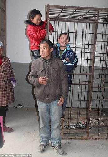 Anh chia sẻ: Anh đang kiếm tiền nuôi gia đình và chạy chữa cho Xiao Wang nhưng vì nhà nghèo nên anh đành nhốt con vào lồng đến khi nào kiến đủ tiền mới đưa con đi bệnh viện.