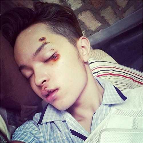 Cũng trong tháng 4/2014, diễn viên phim Tiệm bánh hoàng tử bé - Kelbin Lei - bị cướp giật túi xách. Ngoài việc mất tài sản, anh còn phải nhập viện vì bị trật xương chậu, bể bả vai, gãy răng và nhiều thương tích khác.