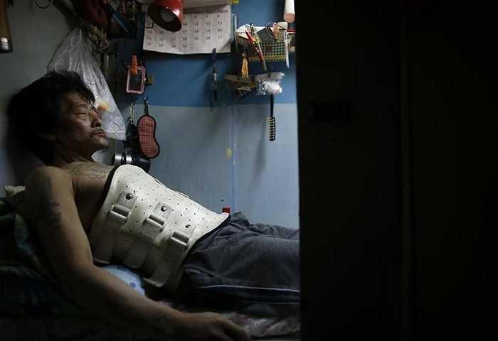 Ông Kam Chung 49 tuổi đang đeo thiết bị để giữ cột sống khi nằm trên chiếc giường trong phòng ở chật chội