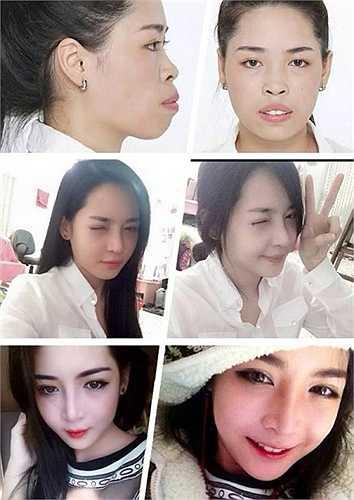 Vũ Thanh Quỳnh đến từ Nam Định là một trường hợp gây bất ngờ gần đây. Sau khi được chương trình Thay đổi cuộc sống của VTV2 tài trợ sang Hàn Quốc, Quỳnh đã từ giã được hàm răng hô, cằm thô và trở thành một cô gái vô cùng xinh đẹp.