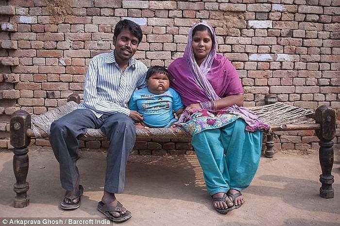 Đến khi 10 tháng tuổi, cô bé đã nặng 18 kg, ăn nhiều gấp 3 bé gái bình thường.