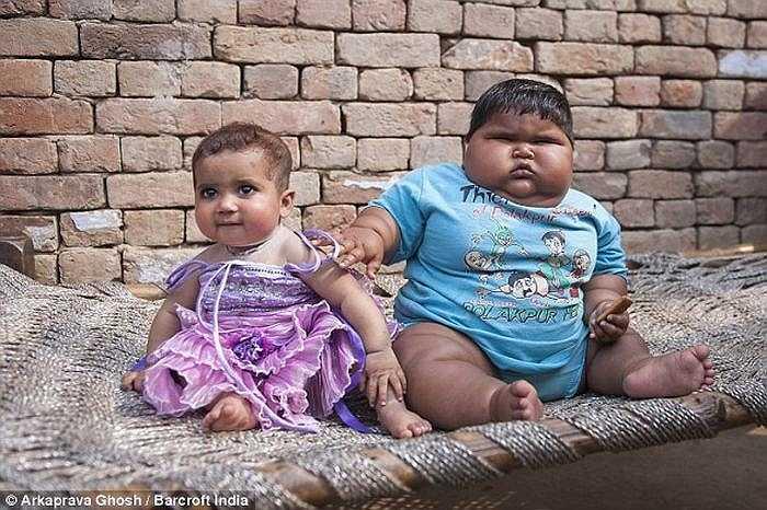 Trước đó, chị gái của Aliya đã qua đời năm 1 tuổi sau khi mắc chứng tăng cân tương tự.