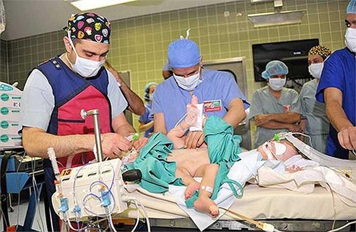 """Phát ngôn viên của bệnh viện cho biết, sau khi kiểm tra sơ bộ, đội ngũ y tế phát hiện ra rằng cặp song sinh này phải """"chia sẻ"""" các cơ quan như hệ thống tiết niệu, xương chậu hay thậm chí cả ruột."""
