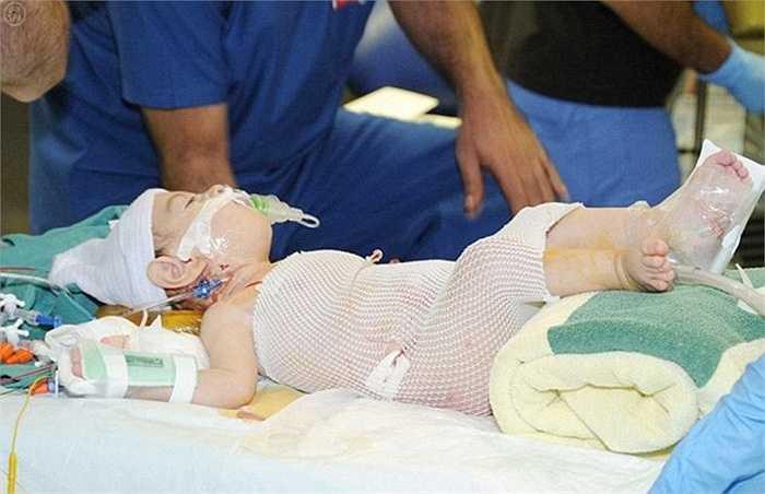 Cặp song sinh Abdullah và Abdulrahman hiện đang được chăm sóc trong đơn vị chăm sóc trẻ em đặc biệt tại bệnh viện Riyadh.