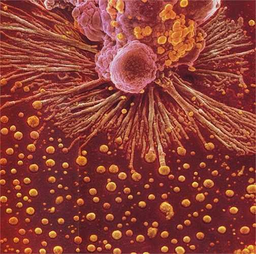 Một đại thực bào (x18.000)(Đại thực bào có vai trò là tế bào trình diện kháng nguyên khởi động đáp ứng miễn dịch đặc hiệu của cơ thể, thực bào các thành phần cặn bã của tế bào và các tác nhân gây bệnh đi vào cơ thể).