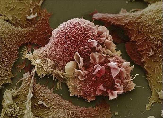 Những tế bào ung thư phổi khi người đã bị ở giai đoạn nặng.
