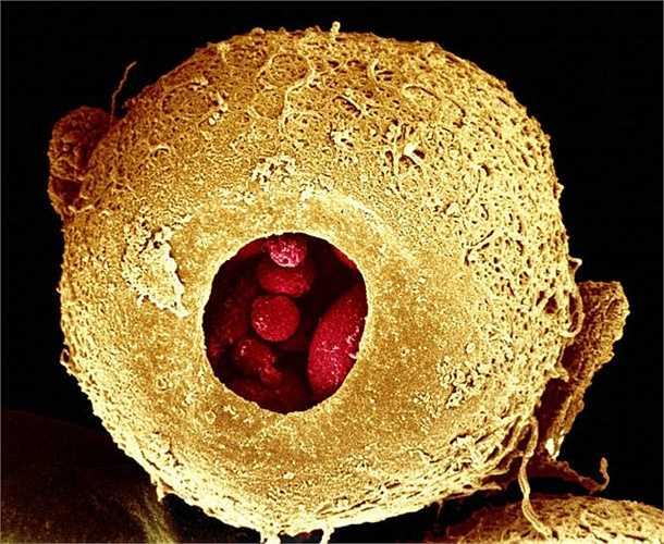 Phôi thai trong tử cung phụ nữ khi được 3 ngày tuổi.