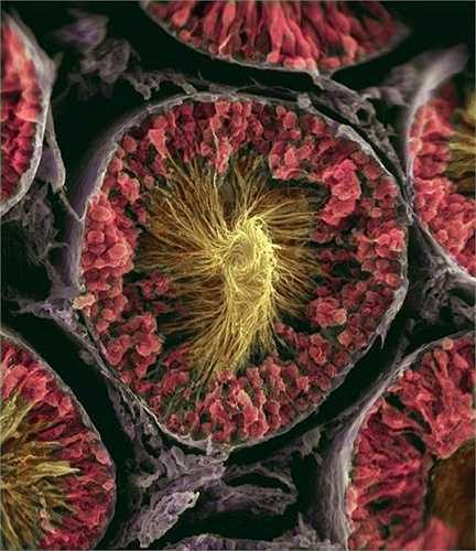 Hình ảnh những con tinh trùng cuộn đuôi vào nhau khi ở trong tinh hoàn.