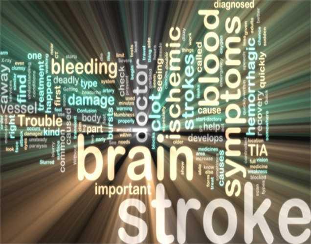 Theo điều tra của Tổ chức Y tế Thế giới, đột quỵ là một trong 10 nguyên nhân gây tử vong hàng đầu, tai biến này là 1 trong 3 nguyên nhân gây tử vong cao nhất. Nếu phát hiện và điều trị sớm, bệnh nhân sẽ được cứu sống và tránh những di chứng nặng nề.