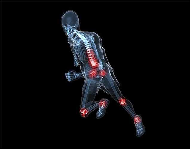 Thuốc dùng cho xương: Một số loại thuốc dùng điều trị chỉnh hình như viêm xương khớp, loãng xương và viêm khớp dạng thấp là nguyên nhân khiến bạn bị chứng ợ nóng và axit trào ngược.