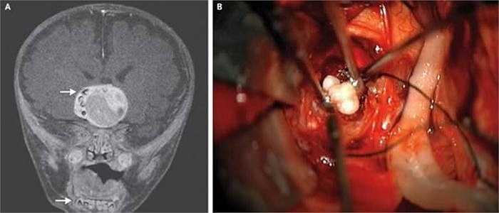 Một bé sơ sinh 4 tháng tuổi sống tại bang Maryland, Mỹ là trường hợp đầu tiên mọc răng trong não. Được biết, tình trạng não răng mọc trong não bị gây ra bởi một khối u não dạng hiếm.