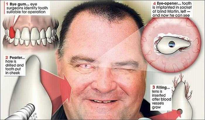 Martin Jones, 46 tuổi, người Anh, đã mất hoàn toàn thị lực và bị mù trong 10 năm. Nhưng nhờ ca phẫu thuật cấy ghép một mẩu răng vào mắt, ông đã lại có cơ hội nhìn thấy ánh sáng một lần nữa.
