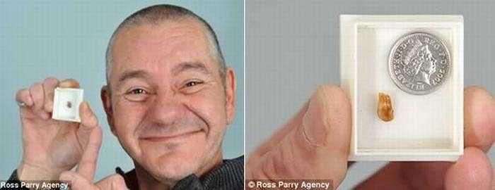 Stephen Hirst (47 tuổi) đã phải chịu đựng những cơn đau đinh tai nhức óc và bị nhiễm trùng bởi 1 chiếc răng bị kẹt sâu trong ống tai suốt hơn 30 năm mà ông không hề hay biết.