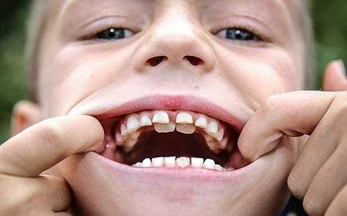 Cậu bé 8 tuổi người Anh, Zak Brown mắc phải căn bệnh có tên răng sữa cá mập khiến hai hàm mọc chồng lên nhau. Hàng răng thừa không gây đau đớn hay làm ảnh hưởng gì tới việc ăn uống của Zak.