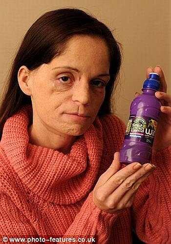 Tại đây, các bác sỹ kiểm tra nướu và phát hiện một mảng màu đỏ trong vòm miệng. Lisa cho biết, cô đã phát hiện vết lạ này 1 năm  trước nhưng bác sỹ gia đình nói rằng, không có vấn đề gì và cô cũng lãng quên.