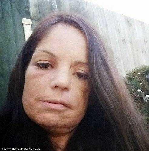 Sau khi kiểm tra lại, các bác sỹ kết luận Lisa đã bị ung thư biểu mô nang VA của vòm miệng cứng, một dạng hiếm của ung thư miệng, khối u ẩn dưới mũi và má đã khiến khuôn mặt cô biến dạng.