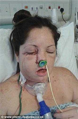 Kích thước của vệt lạ này đã to hơn đồng xu. Nghĩa là, khối u ung thư đã đến giai đoạn cuối, cô có thể chết sau vài tuần nữa nếu không được phẫu thuật.